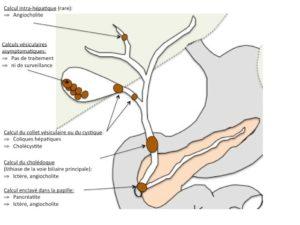 Pathologie lithiasique - Calcul intra-hépatique, Calculs vésiculaires asymptomatiques, Calcul du collet vésiculaire ou du cystique, Calcul du cholédoque, Calcul enclavé dans la papille
