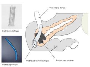 Cathétérisme biliaire ou pancréatique extraction prothèse biliaire
