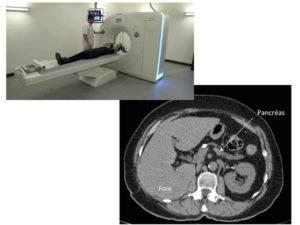 Scanner du foie et du pancréas - CBIPPS