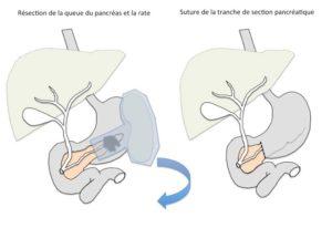 Spléno-pancréatectomie gauche (SPG) - Résection de la queue du pancréas et la rate et suture de la tranche de section pancréatique